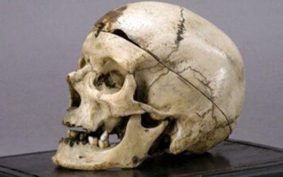 "Museo Antropologia Criminale ""Cesare Lombroso"""